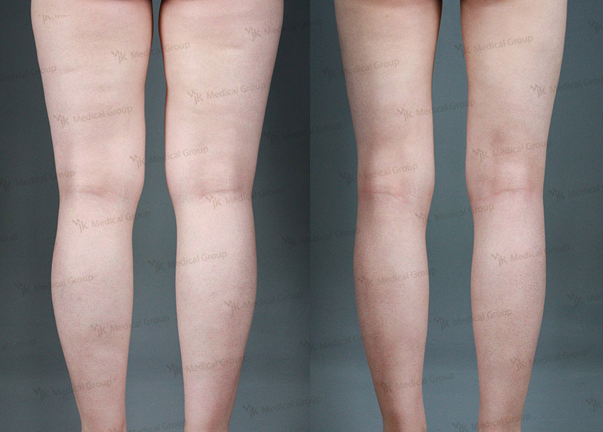 3D LIPOSUCTION (Thigh, Calf)
